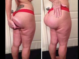 5 Cases of failed Butt surgery you should see today