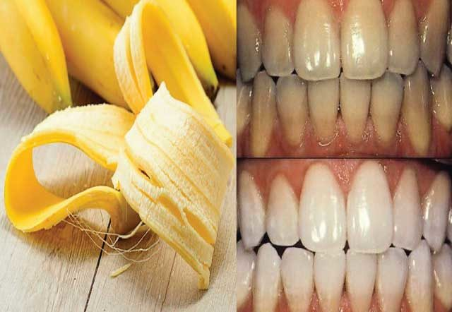 See How To You Cab Use Banana Peel to Whiten Teeth In 6 Easy-To-Do Steps