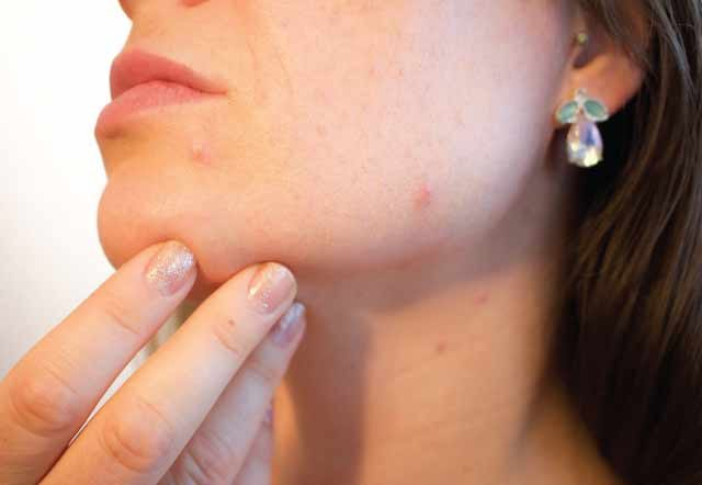 15-Natural way to get rid of pimples Fast