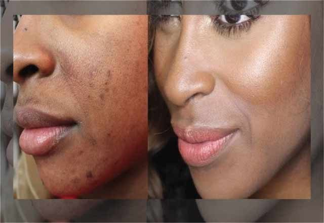 17 Natural Remedies to Get rid of Acne Scars and Acne Dark Spot