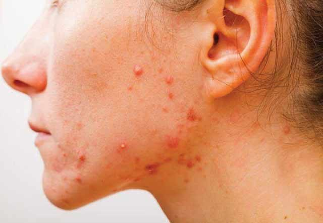 31 Foods To Avoid that Causes Pimples also known as Acne