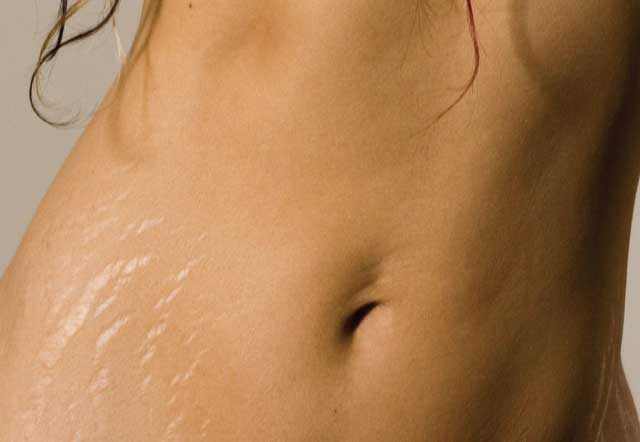 12 Stretch Marks Facts And Stretch Marks Removal